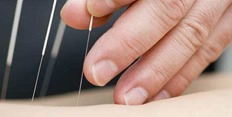 Acupuncture TCM